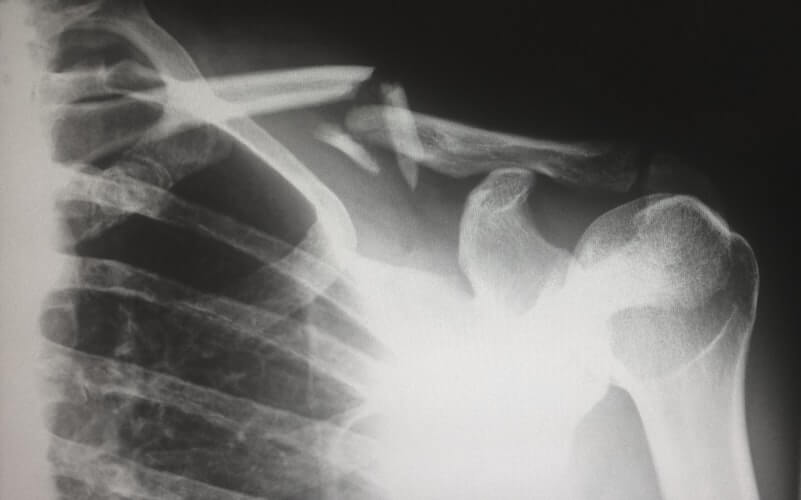 An X-Ray of a person who didn't get the help of Philly movers